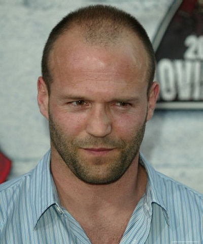 hairstyles-for-balding-men