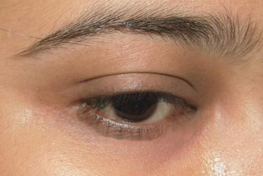eye 1-1(1)